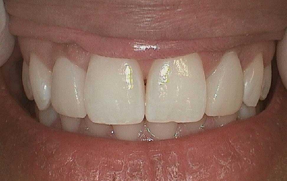 Sunrise Dental   Dr  Natalie Scott   Dentist in Round Rock, Texas